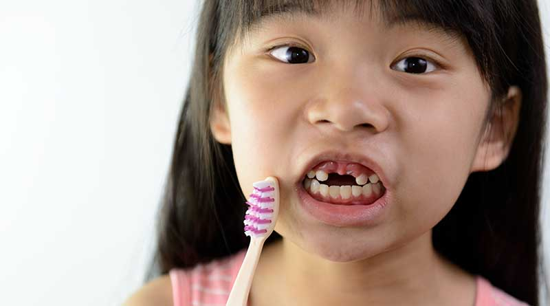 Little Asian girl without front teeth holding a tooth brush